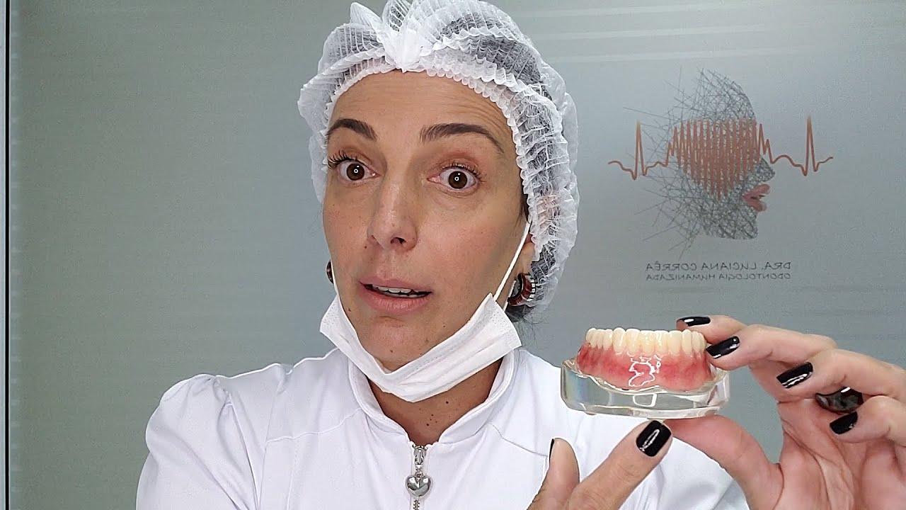 DENTADURA ABOTOADA! O benefício de ingressar na categoria dos Implantes Dentários.
