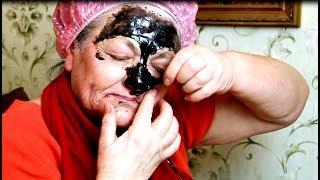 Отрываю старую кожу вместе с угрями.  Супер способ сделать лицо молодым и красивым в 60 лет.