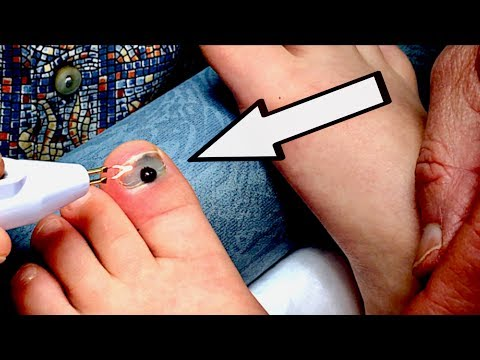 BURNING A HOLE THROUGH A TOENAIL (with blood trapped under it) | Dr. Paul