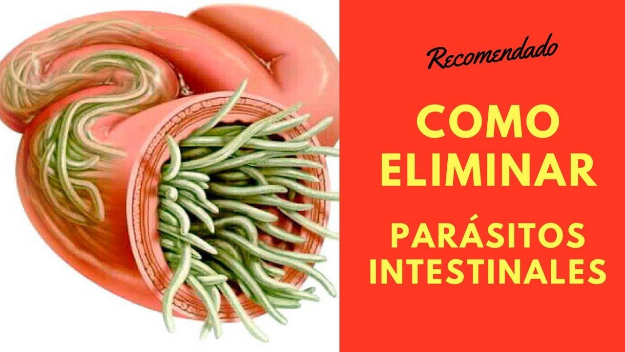 Parásitos en el intestino: remedios naturales