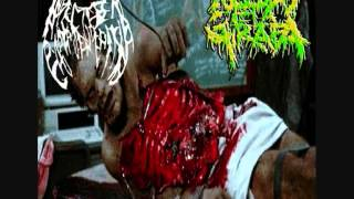 Infected Gastroenteritis - #Untitled# Autopsy