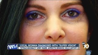 San Diego woman Concetta Antico diagnosed with