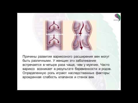 Видео словиях
