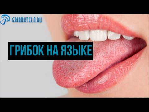 Грибок на языке: