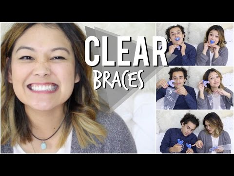 Affordable Clear Braces   Smile Care Club