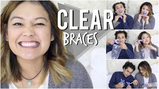 One of JaaackJack's most viewed videos: Affordable Clear Braces | Smile Care Club