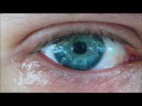 Глаза на улице болят