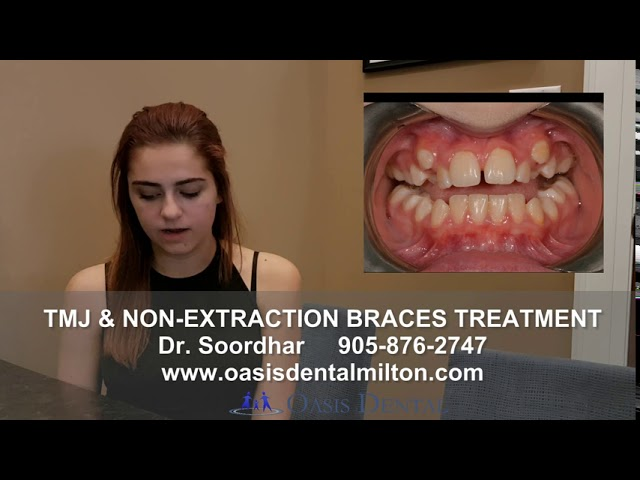 Non Extraction Braces for Severe Crowding | ALF Treatment |