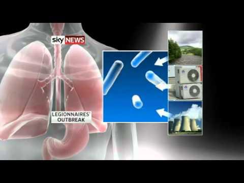 maladie des l�gionnaires toux chronique toux