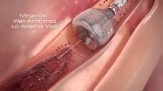 Latest Technology of Blood Clot Removal-OB News