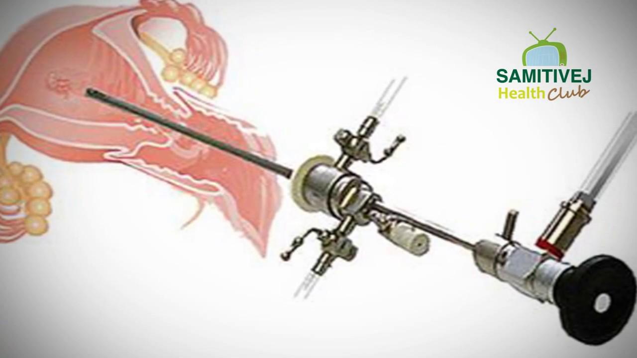 การส่องกล้องตรวจโพรงมดลูก (Hysteroscopy)