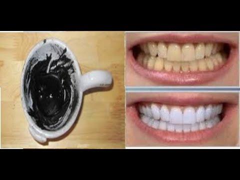 Como Acabar Com O Tartaro Em 3 Minutos E Clarear Os Dentes Com