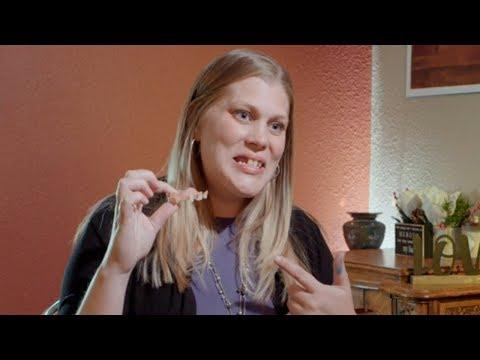 Dental Implants: Krista's Story