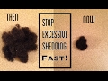 watch he video of Stop Excessive Hair Shedding FAST! | Natural Green Tea Rinse