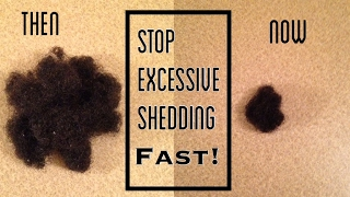 Stop Excessive Hair Shedding FAST! | Natural Green Tea Rinse