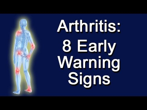 Arthritis: 8 Early Warning Signs
