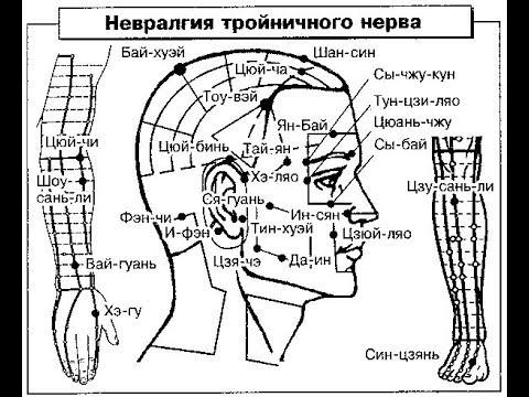 тройничный нерв воспаление боли лица мучительные
