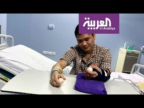 صباح العربية | نجاح أول عملية جراحية لزرع كف من متبرع حي  - نشر قبل 3 ساعة