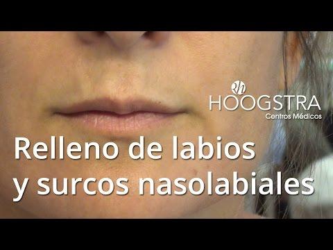 Relleno de labios y surcos nasolabiales (16010)