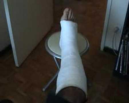 jambe dans le plâtre - YouTube