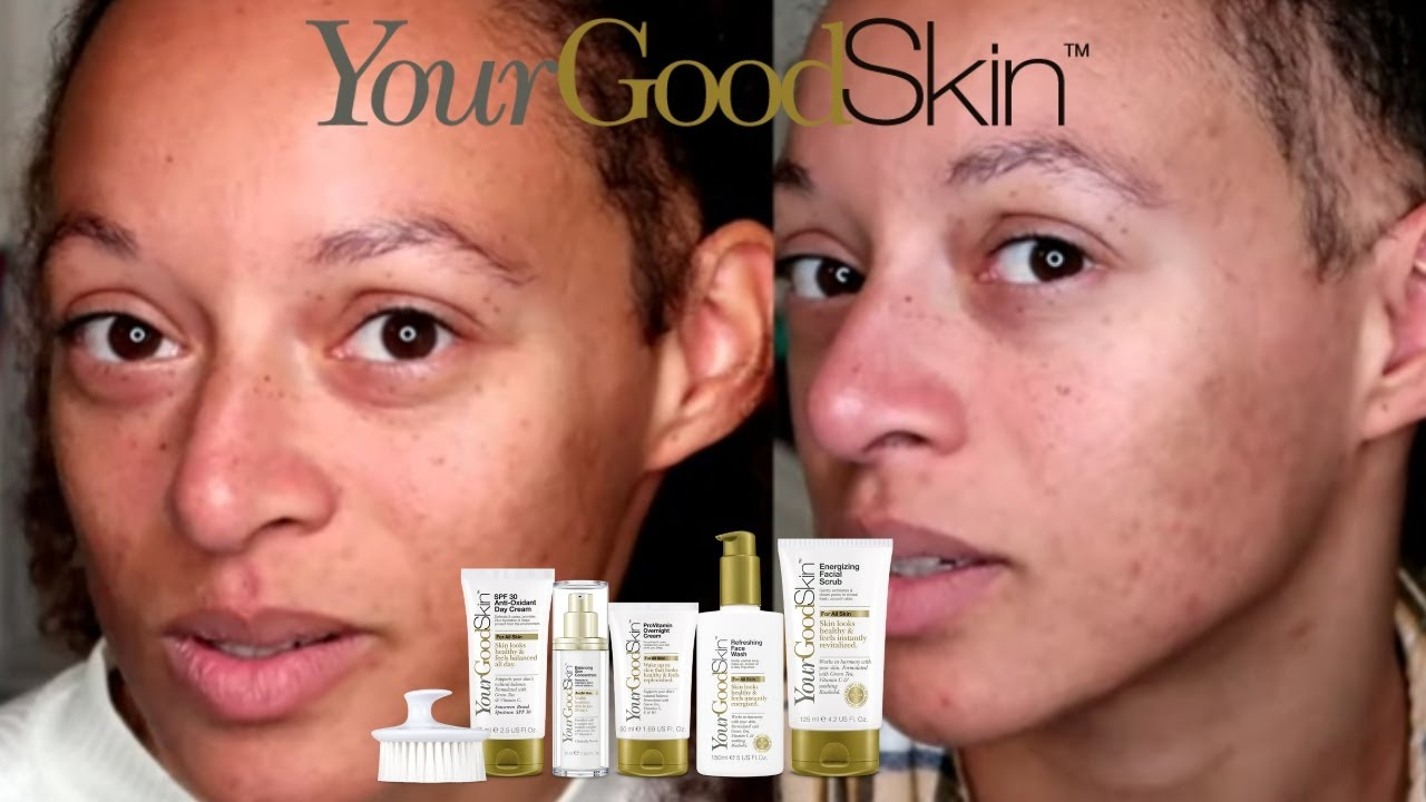 YOUR GOOD SKIN REVIEW - ACNE PRONE SKIN - YouTube