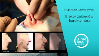 Efekty po korekcie nosa u kobiet i mężczyzn. Zabiegi przeprowadzone w Klinice Timeless w Warszawie przez dr Janusza Jaworowskiego