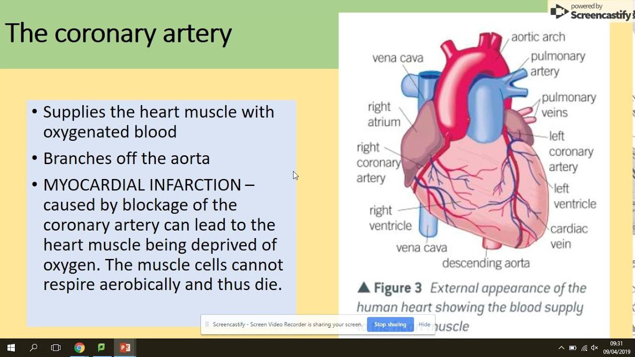3.3.4.4 The structure of the heart. AQA A level biology ...
