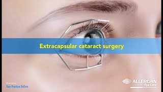 Extra Capsular Cataract Surgery ( ECCE)