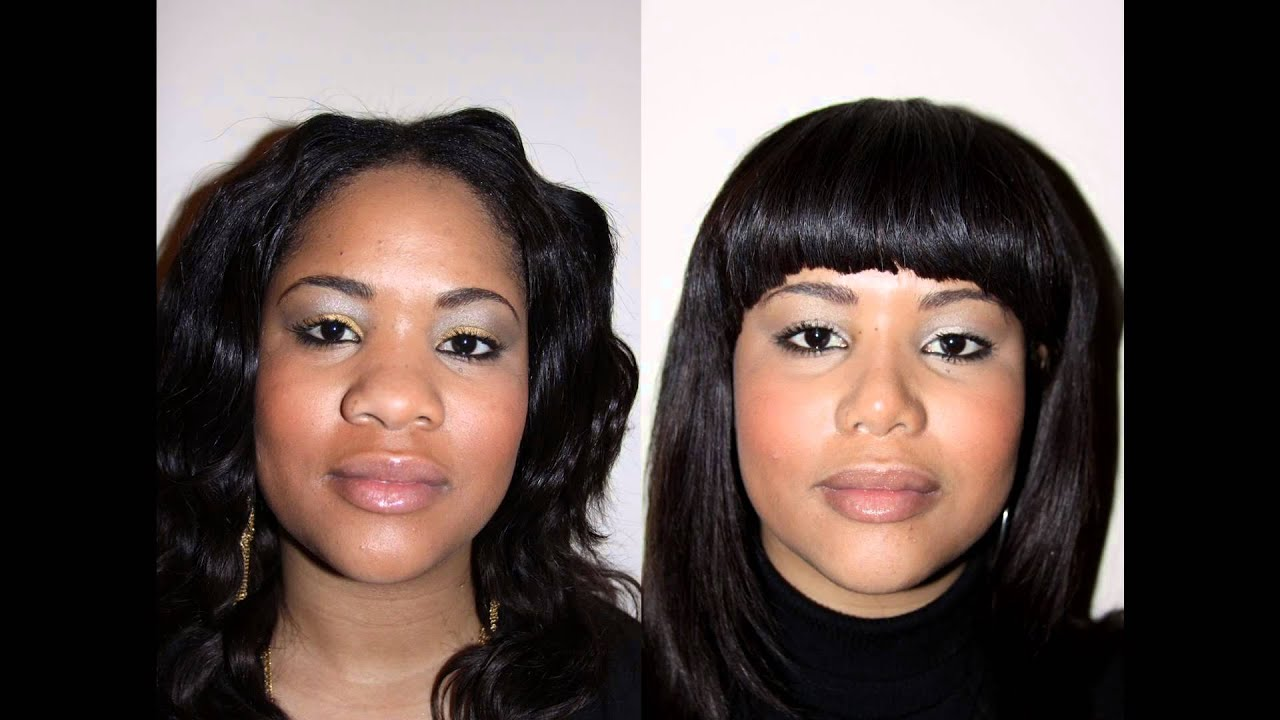 African American (Black) Rhinoplasty in NYC
