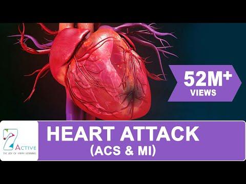 HEART ATTACK (ACS & MI) Mp3