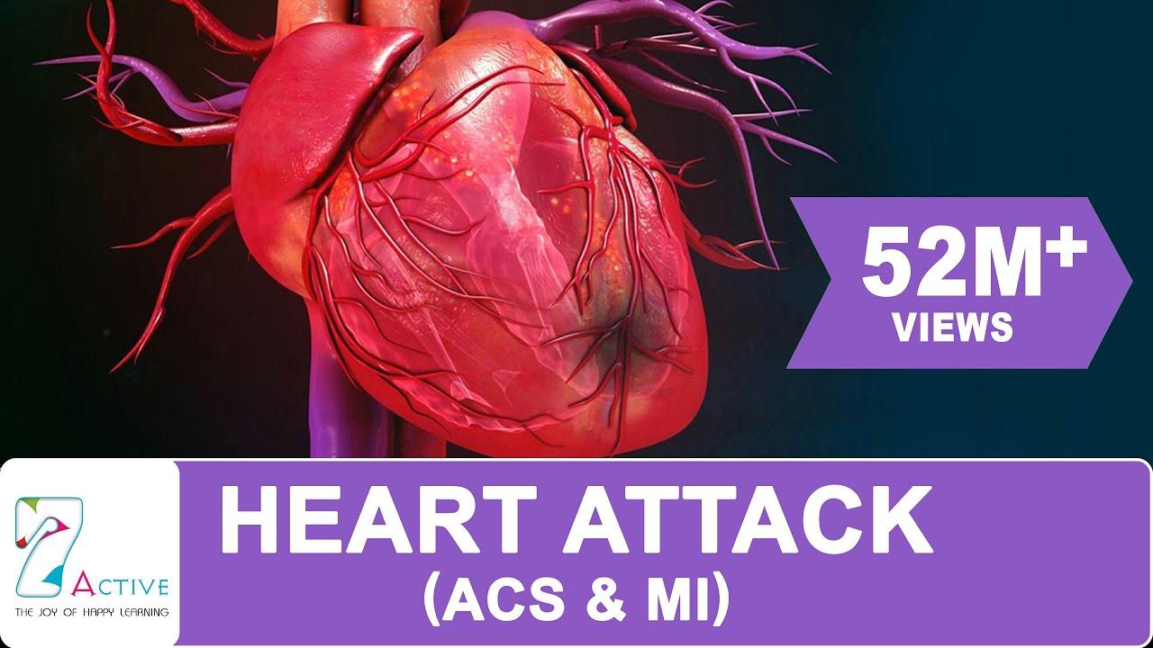 Download HEART ATTACK (ACS & MI)