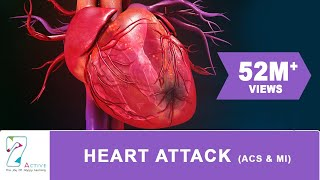 symptoms of heart attack in hindi