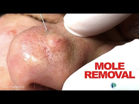 Removing A Mole.