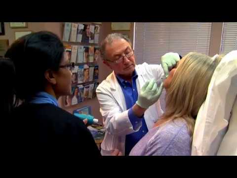 Debbie's experience at California Skin and Laser Center