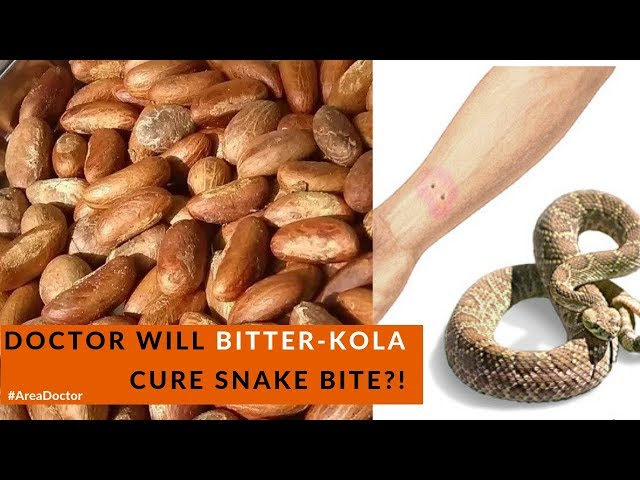 Doctor Will Bitter-kola Cure Snake Poison?!- #AreaDoctor (Pidgin English)
