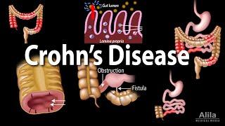Download Crohn's Disease: Pathophysiology, Symptoms, Risk factors, Diagnosis and Treatments, Animation.