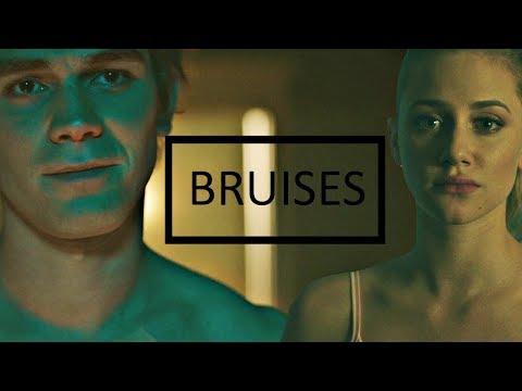 Betty & Archie | Bruises