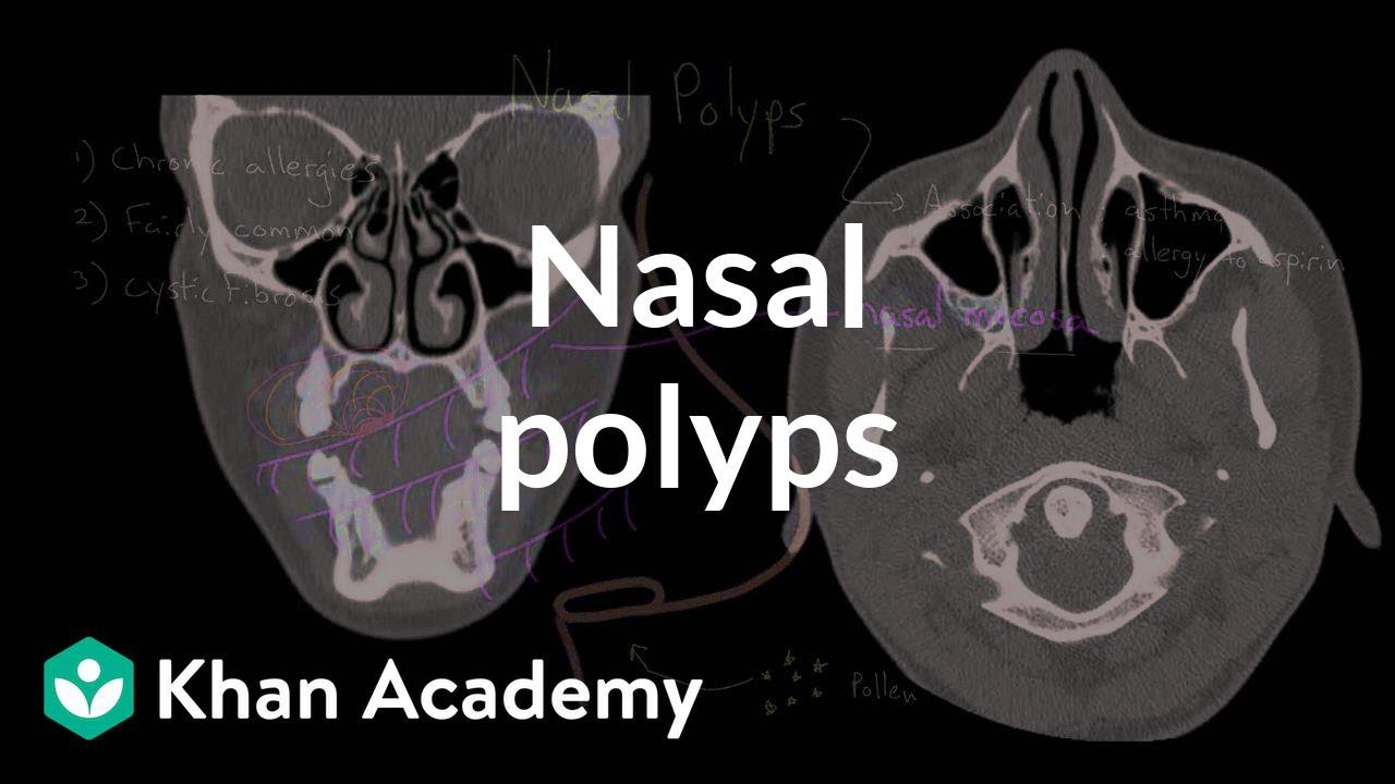 Nasal polyps (video) | Khan Academy