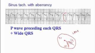 ECG: Sinus Rhythm with Aberrancy
