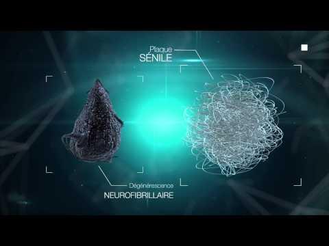Vidéo La maladie d'Alzheimer : le cerveau à la loupe