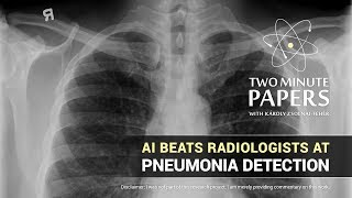 AI Beats Radiologists at Pneumonia Detection | Two Minute Papers #214