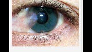 Adiós a la Carnosidad en los ojos sin operación/ Goodbye to eyes carnosity forever