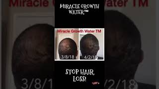 MIRACLE GROWTH WATER™️ GROW HAIR & STOP HAIR LOSS