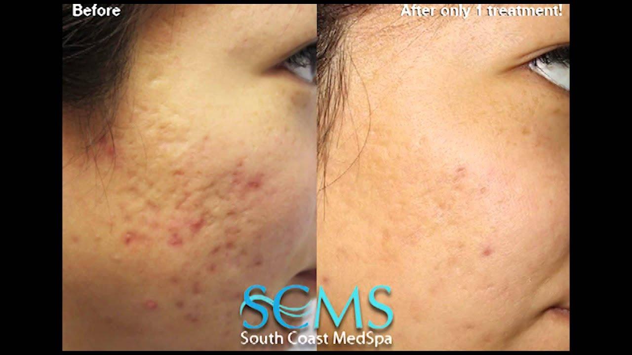 Laser Acne Scar Removal Before After Female Olive Skin