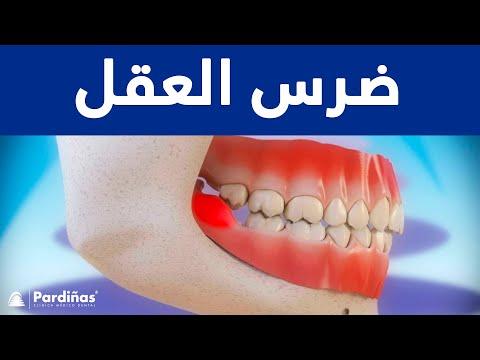 ضرس العقل المائل Style Smile Dental Center Facebook