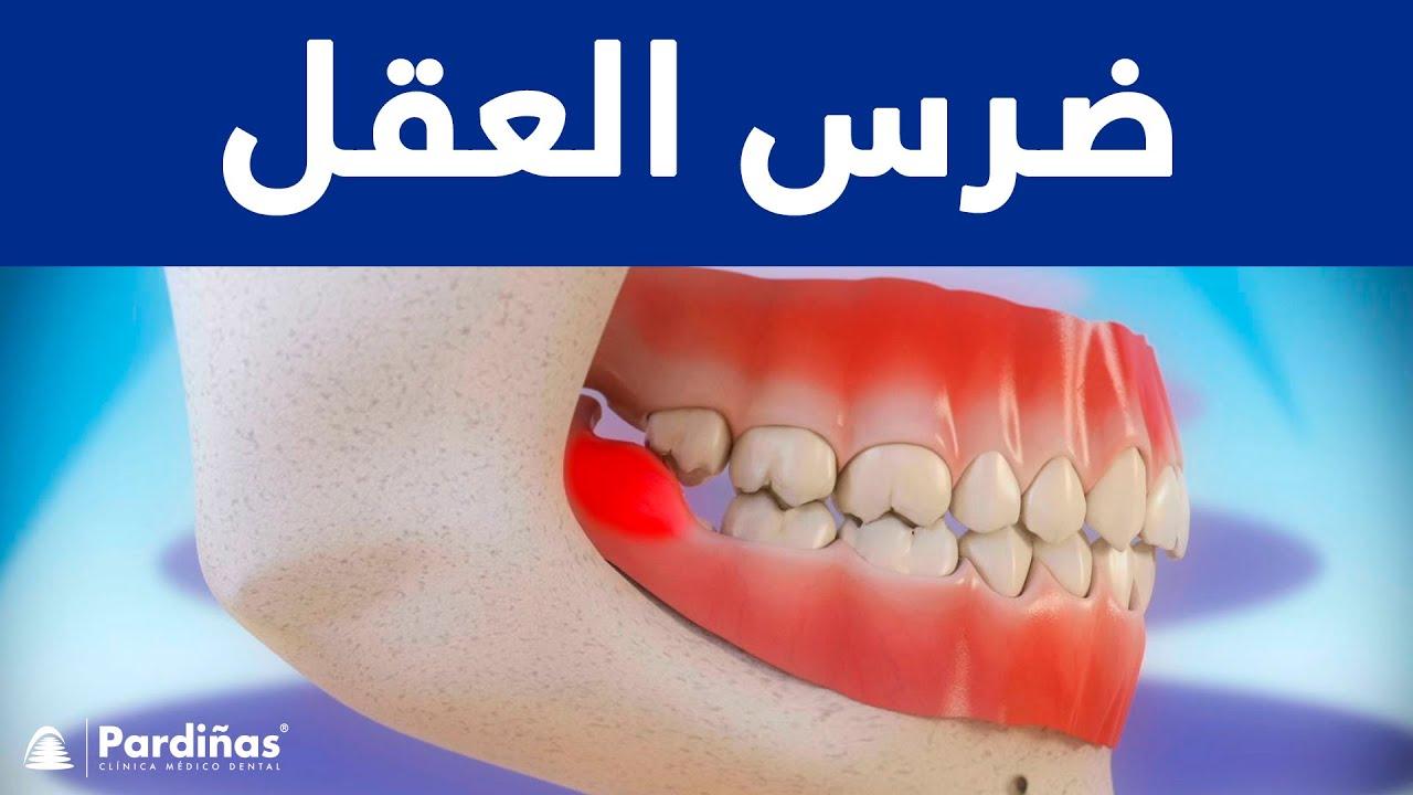 قلع الأسنان علاج Socket Preservation C Youtube