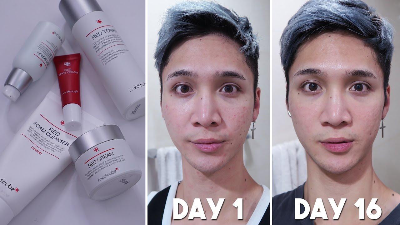 Image Result For Acne Prone Skin Skincare