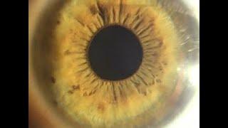 Глаза. Тайна зрения - Вести 24