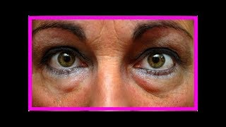 Remèdes pour désenflammer les yeux gonflés