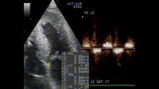 Cardiac Amyloidosis echo case by dr Chatziathanasiou-diagnosis, ECG, echo and treatment
